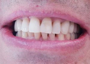 VG1 implant dentar