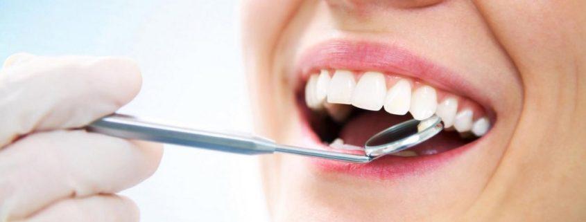 probleme dentare, control de rutina