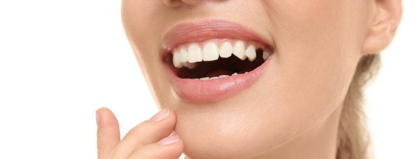 probleme dentare, dinte lipsa1