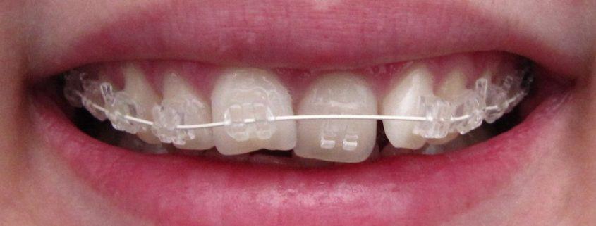 probleme dentare, dinti strambi